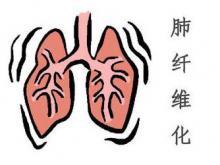 清肺仪治疗肺纤维化